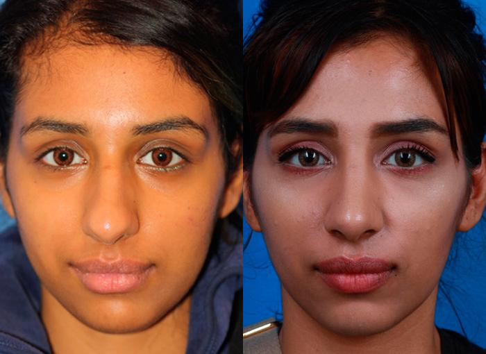 patient-12165-ethnic-rhinoplasty-before-after-3