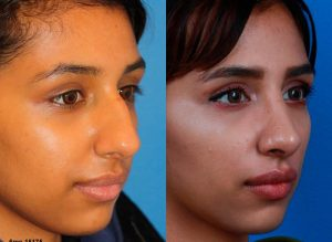 Ethnic Rhinoplasty before and after image performed by Dr. Philip Miller of NYC.
