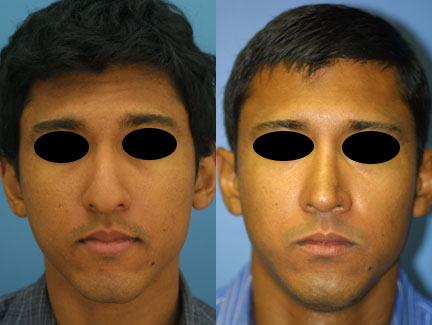 patient-12193-ethnic-rhinoplasty-before-after-3