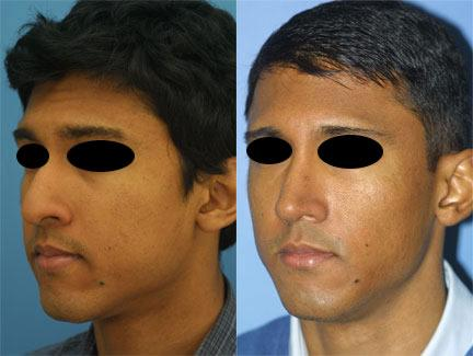 patient-12193-ethnic-rhinoplasty-before-after-4