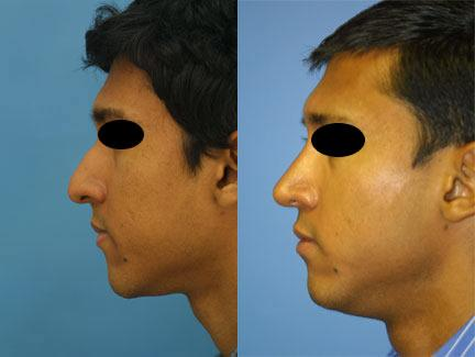 patient-12193-ethnic-rhinoplasty-before-after-5