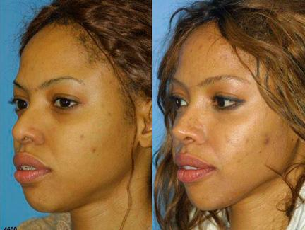 patient-12200-ethnic-rhinoplasty-before-after-6