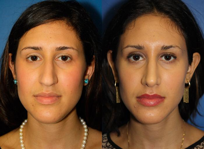 patient-12209-ethnic-rhinoplasty-before-after-3