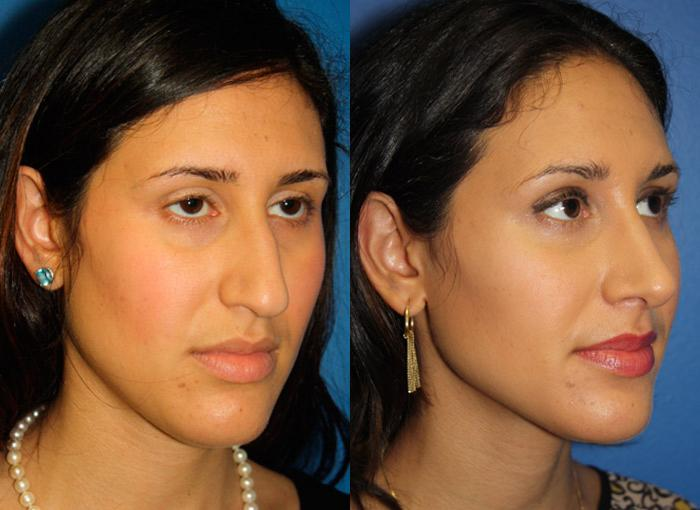 patient-12209-ethnic-rhinoplasty-before-after-4