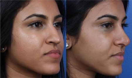 patient-12216-ethnic-rhinoplasty-before-after-1