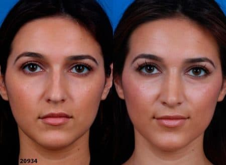 patient-12219-ethnic-rhinoplasty-before-after-2