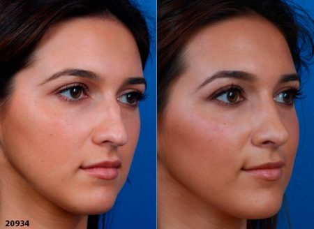 patient-12219-ethnic-rhinoplasty-before-after-3