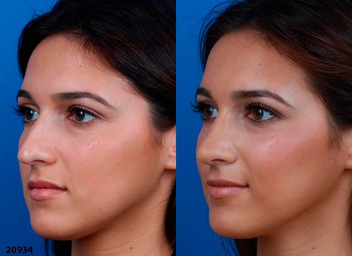 patient-12219-ethnic-rhinoplasty-before-after-4