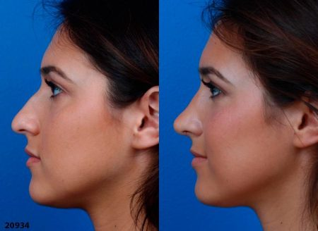 patient-12219-ethnic-rhinoplasty-before-after-6