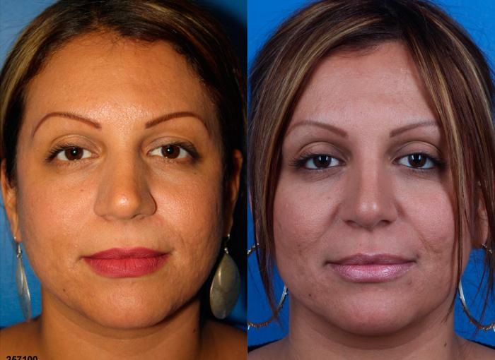 patient-12222-ethnic-rhinoplasty-before-after-1