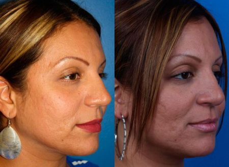 patient-12222-ethnic-rhinoplasty-before-after-2