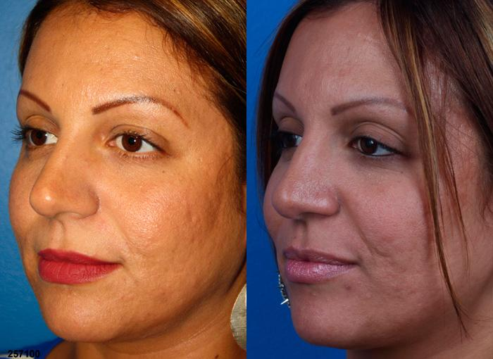 patient-12222-ethnic-rhinoplasty-before-after-3
