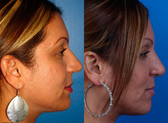 patient-12222-ethnic-rhinoplasty-before-after-4