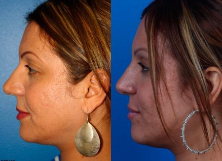 patient-12222-ethnic-rhinoplasty-before-after-5