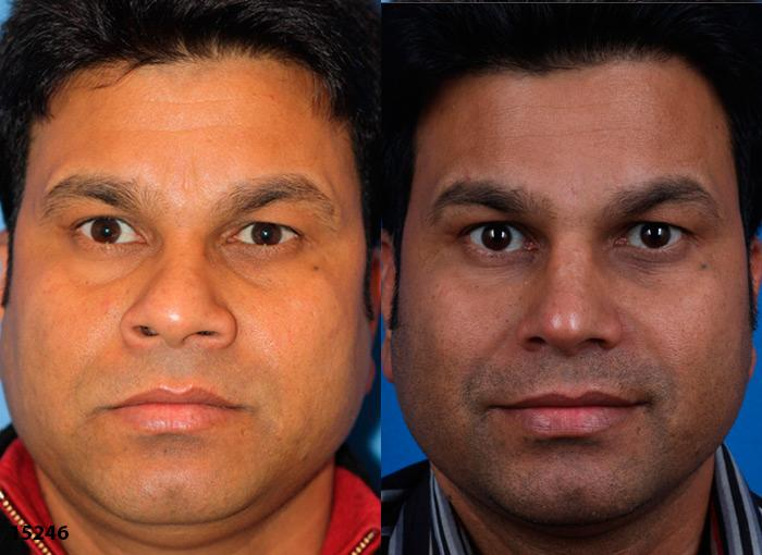 patient-12225-ethnic-rhinoplasty-before-after-1