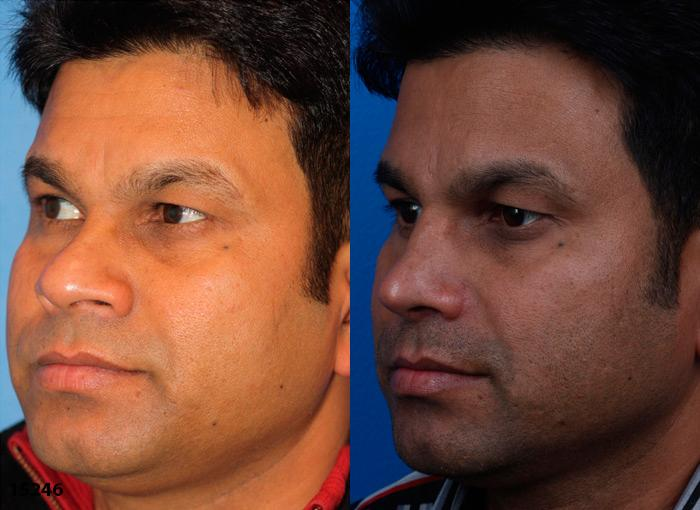 patient-12225-ethnic-rhinoplasty-before-after-2