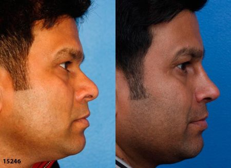 patient-12225-ethnic-rhinoplasty-before-after-3