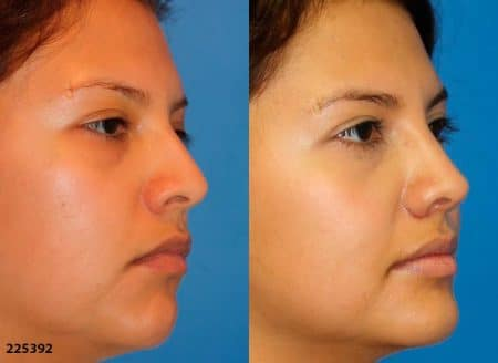 patient-12228-ethnic-rhinoplasty-before-after-1