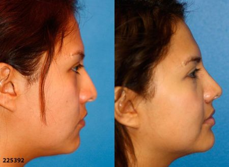 patient-12228-ethnic-rhinoplasty-before-after-2