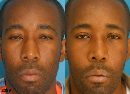 patient-12234-ethnic-rhinoplasty-before-after-1