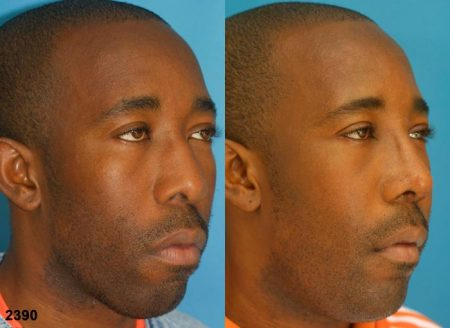 patient-12234-ethnic-rhinoplasty-before-after-2