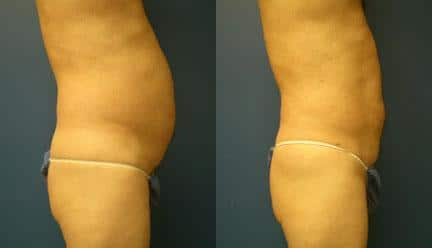 patient-12237-body-liposuction-before-after-1