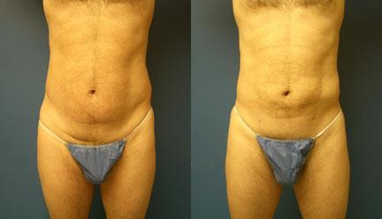 patient-12237-body-liposuction-before-after