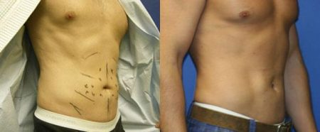 patient-12242-body-liposuction-before-after-1