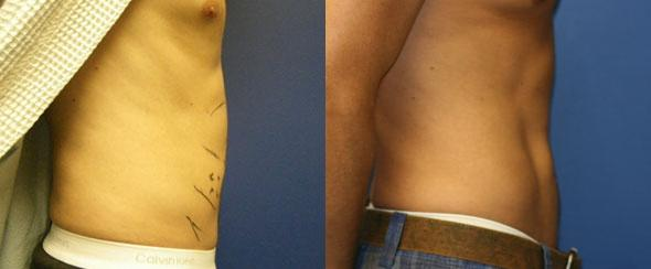 patient-12242-body-liposuction-before-after-2