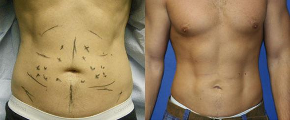 patient-12242-body-liposuction-before-after