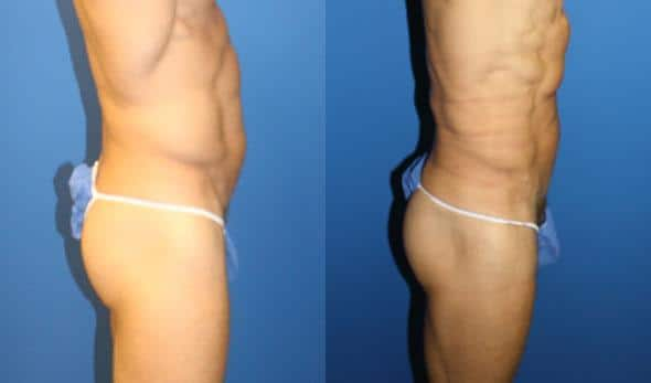 patient-12249-body-liposuction-before-after-1