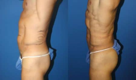 patient-12249-body-liposuction-before-after-2