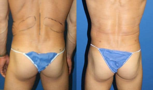 patient-12249-body-liposuction-before-after-3