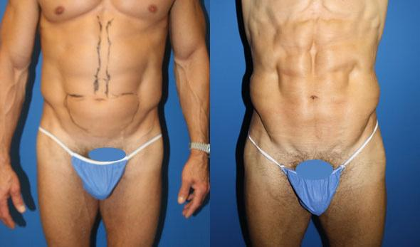 On the left, a man's torso is shown with some excess fat in the abdominal area and markings to prepare for liposuction. On the right, the same man's torso is shown after liposuction revealing more defined abdominal muscles and less fat.
