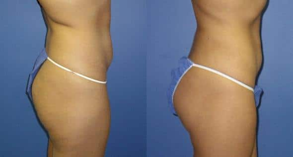 patient-12258-body-liposuction-before-after-1