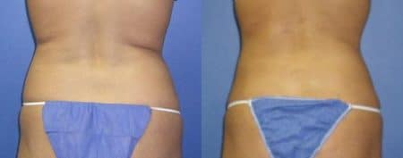 patient-12258-body-liposuction-before-after-2
