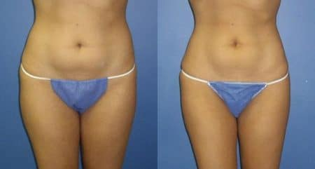 patient-12258-body-liposuction-before-after