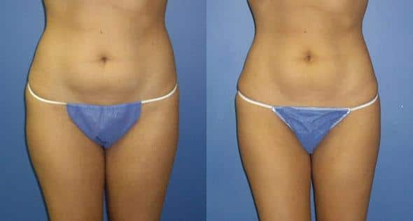 On the left, a woman's torso is shown with some excess fat under her belly button, on the right, the same woman's torso is shown after liposuction and appears visible slimmer