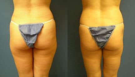 patient-12265-body-liposuction-before-after-1