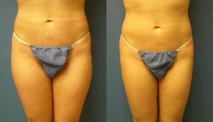 patient-12265-body-liposuction-before-after (1)
