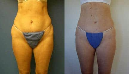 patient-12270-body-liposuction-before-after