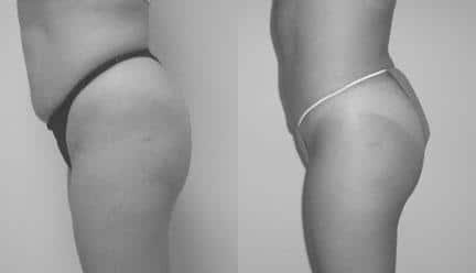 patient-12273-body-liposuction-before-after