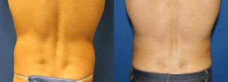 patient-12279-body-liposuction-before-after-1