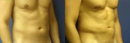 patient-12284-body-liposuction-before-after-1