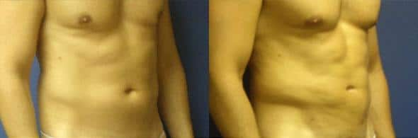 On the left, a man's torso is shown with some excess fat under his belly button, on the right, the same man's torso is shown after liposuction and appears visible slimmer