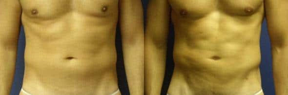 patient-12284-body-liposuction-before-after