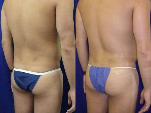 patient-12289-body-liposuction-before-after-1