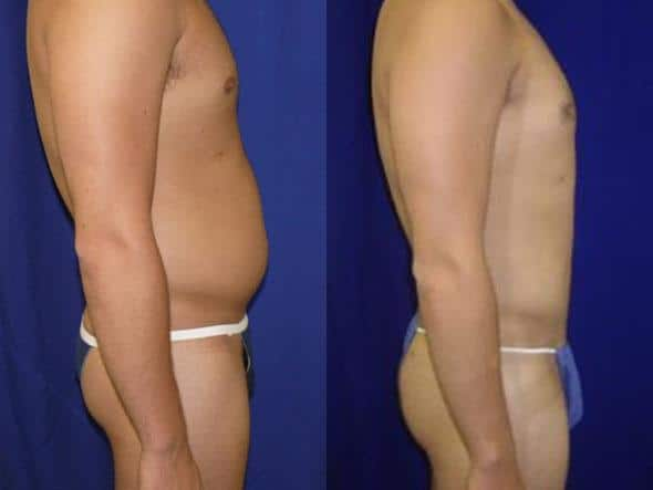 On the left, a man's torso is shown in profile with some excess fat under his belly button, on the right, the same man's torso is shown in profile after liposuction and appears visible slimmer