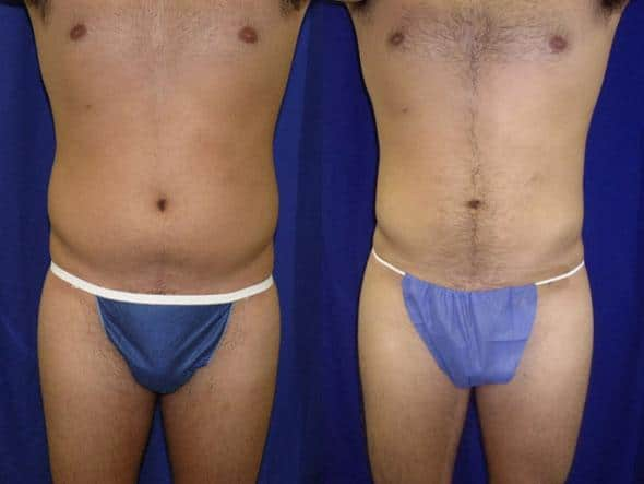 patient-12289-body-liposuction-before-after