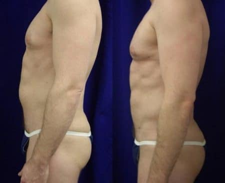 patient-12298-body-liposuction-before-after-2